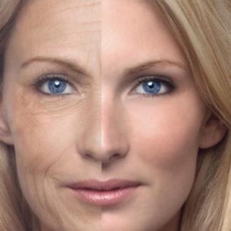 comparación de rostro novia antes y después