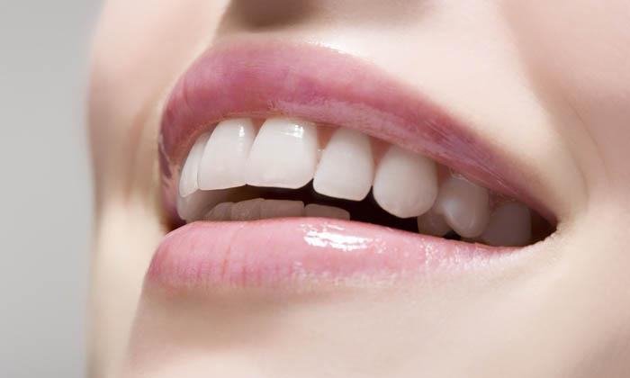 sonrisa novia con dentadura perfecta